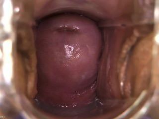 Apologise, but, inside speculum creampie think, that you