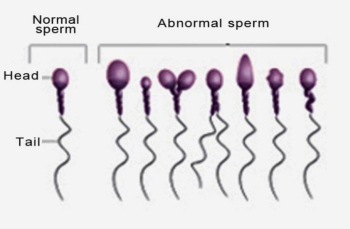 Turk reccomend Abnormal tails on sperm