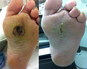 best of Bottom foot for Pad ulcer of