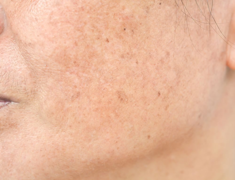 best of Under facial skin White mark