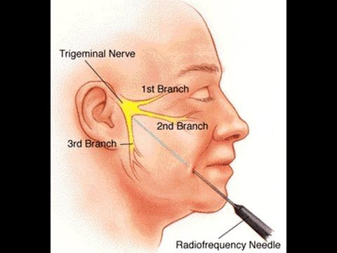 best of Forehead Facial neuropathy