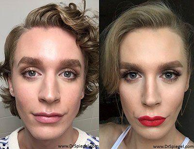 Chocolate C. reccomend Pretty facial feminization